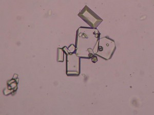Cristalli di struvite al microscopio